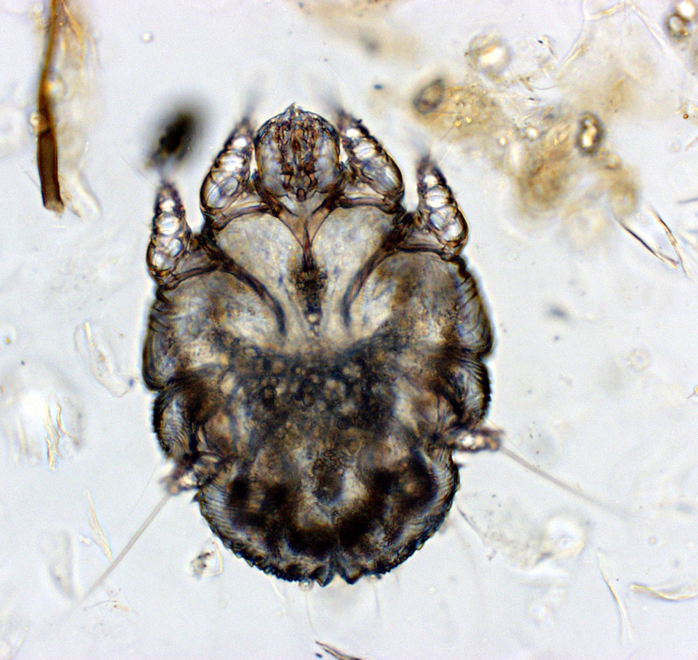 Scabies Mite Pictures